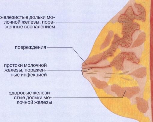 лактостаз фото